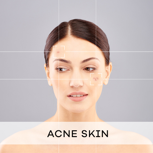 acne sensitive skin specialist singapore theresa beauty